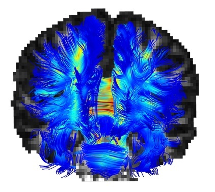 The Strauss Computational Neuroimaging Center